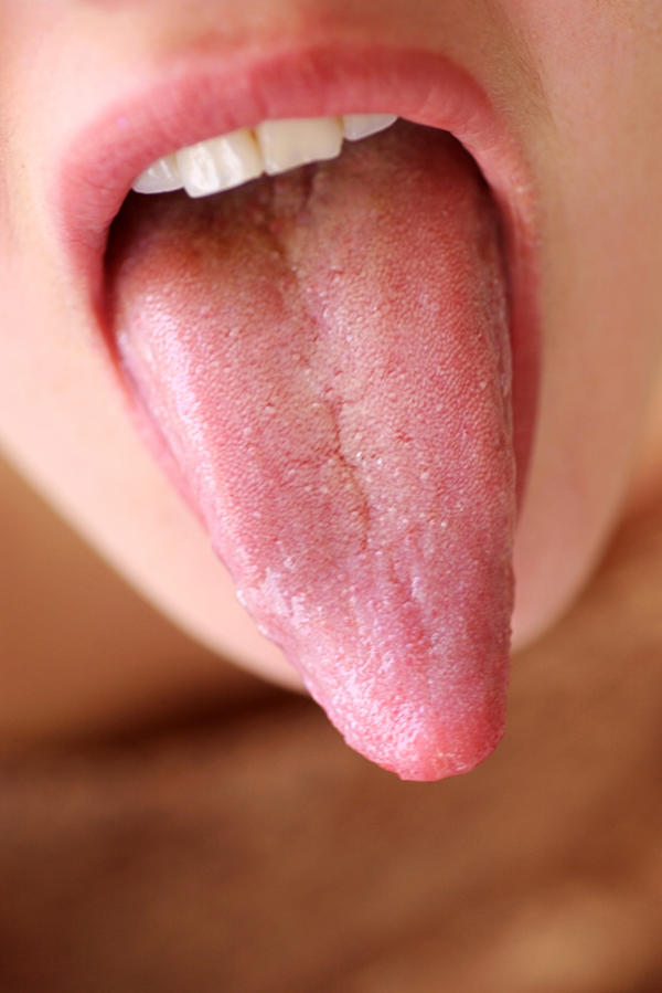 tongue papillae hypertrophy causes papillomavirus infection condom