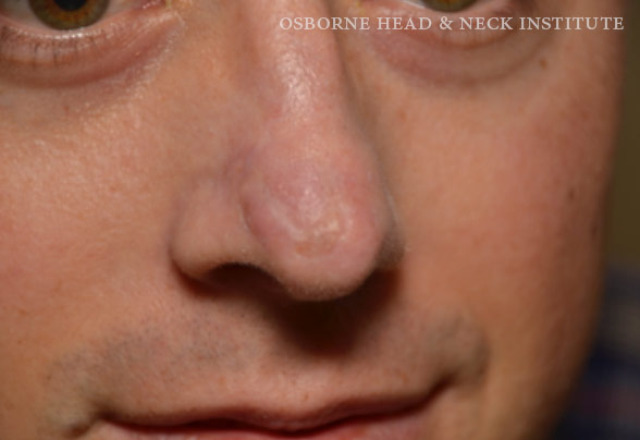 cancer tip of nose