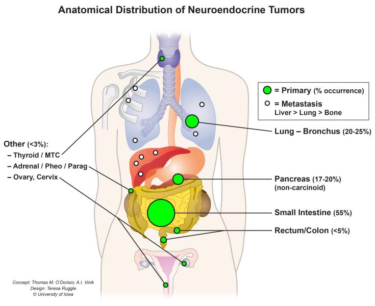neuroendocrine cancer growth simptome cancerul de san