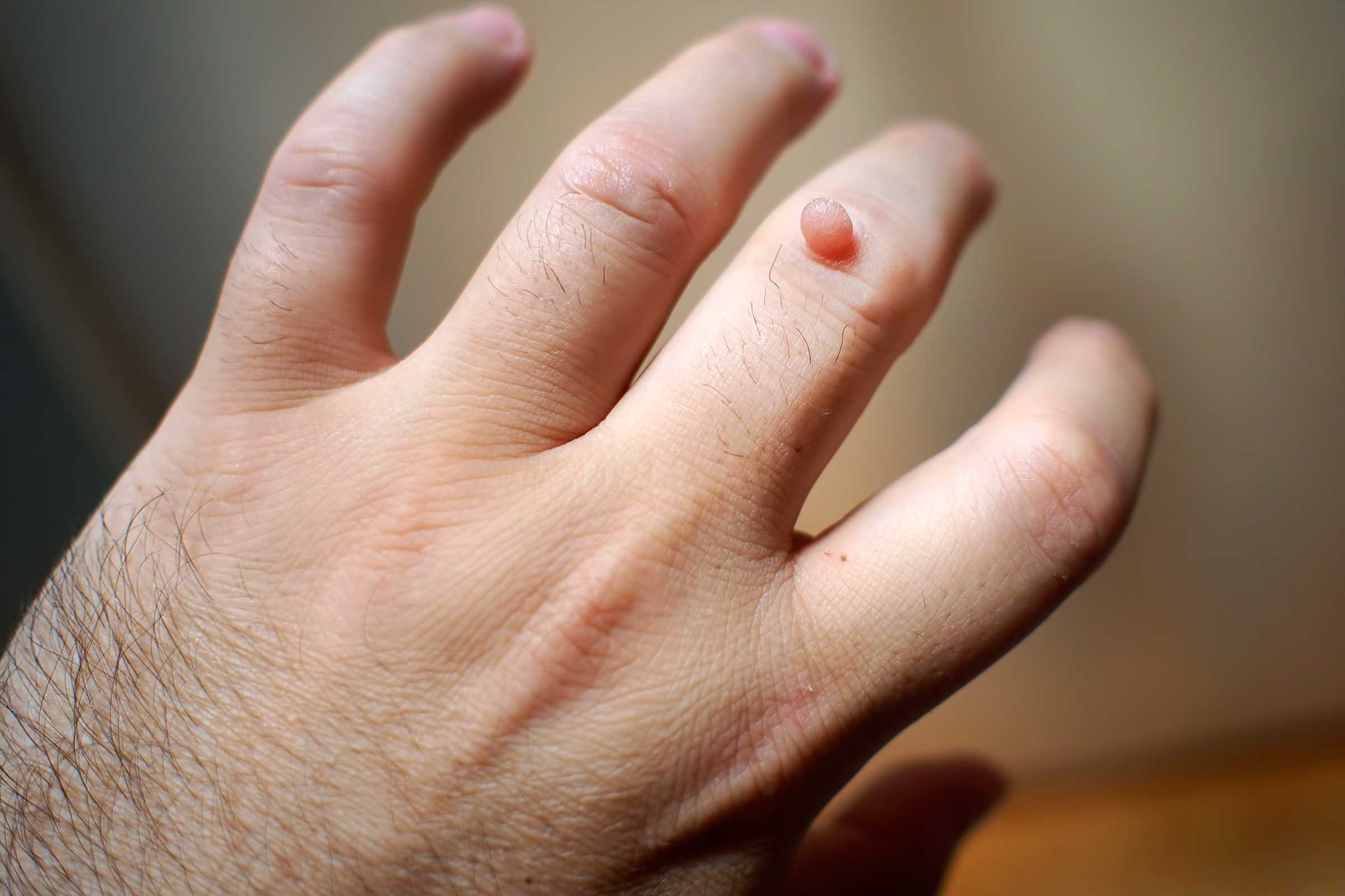 warts on hands medical term