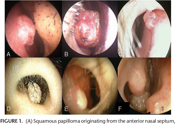 papilloma of the nasal septum parazitii scandal politie