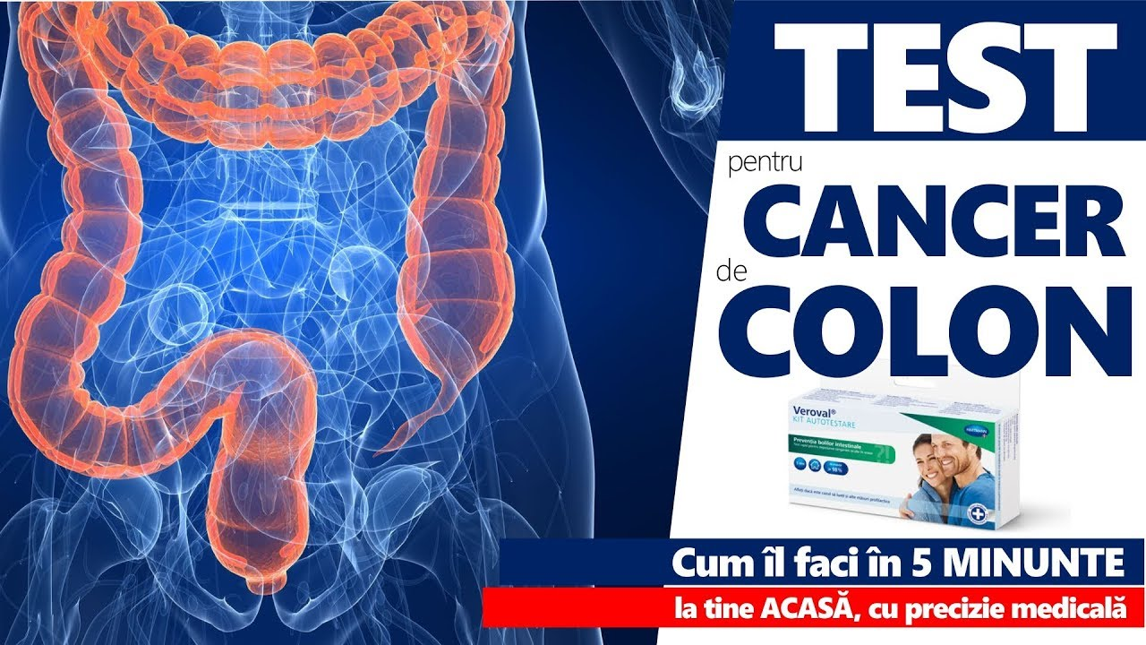Cancerul de colon: Factori de Risc, Simptome & Tratament