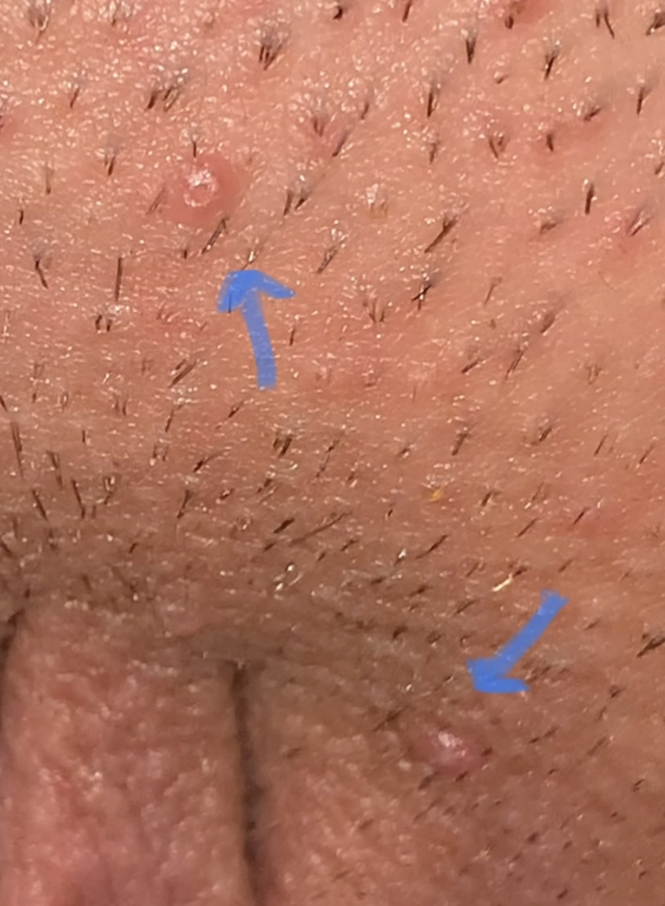 hpv or herpes how do you get hpv