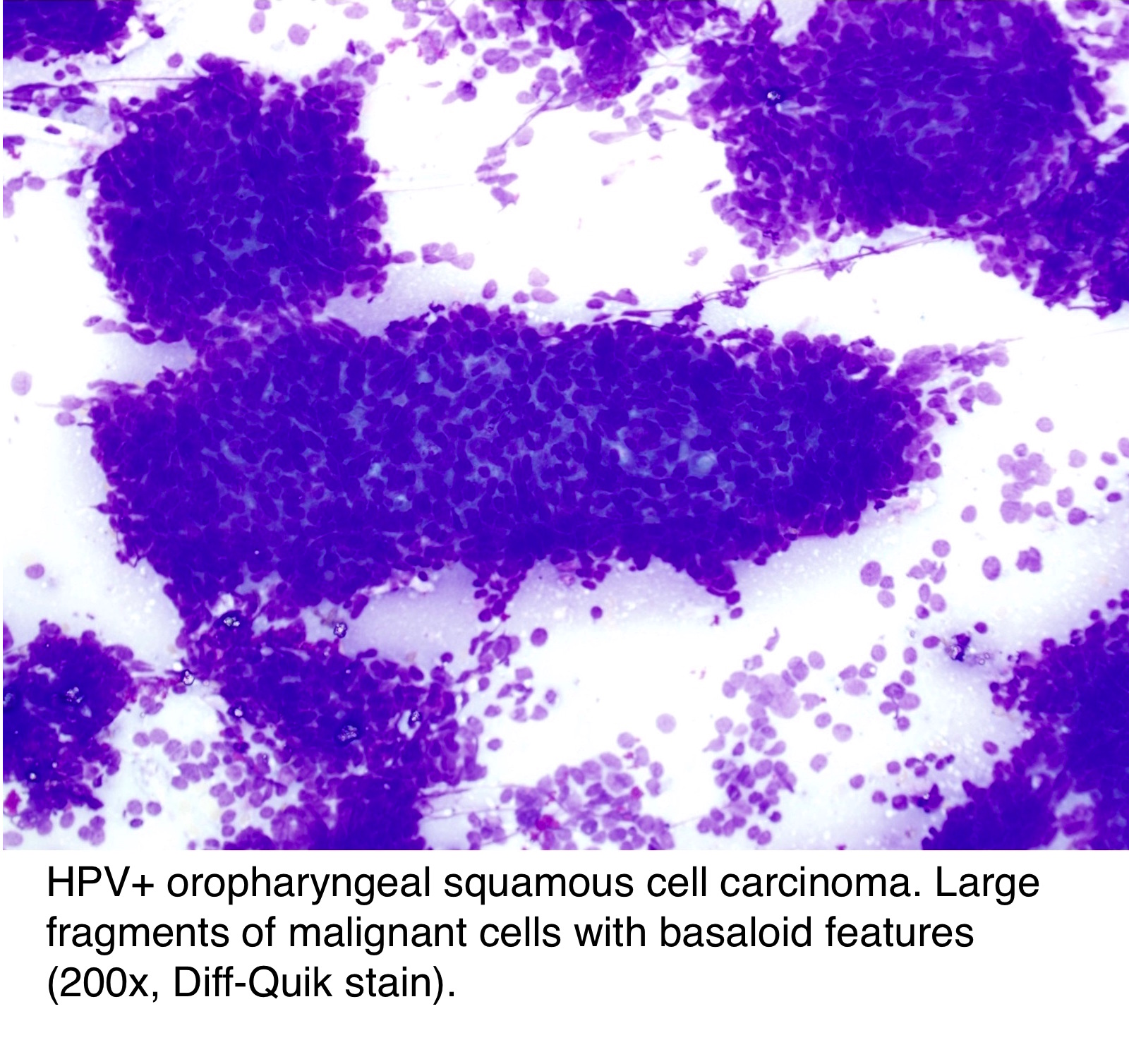 hpv squamous cell metastatic carcinoma