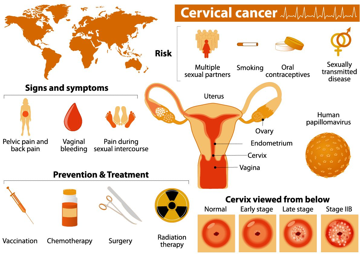 cervical cancer last stage symptoms