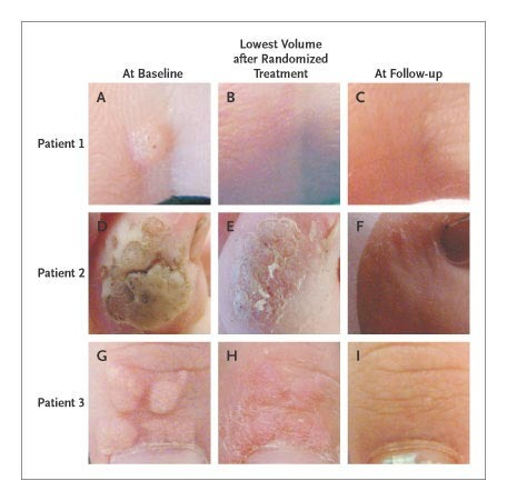 treatment of skin papilloma