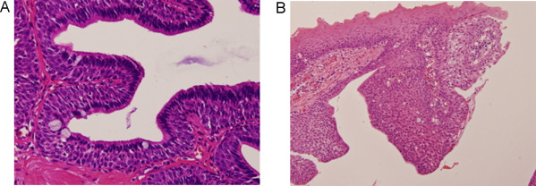 ductal papilloma types