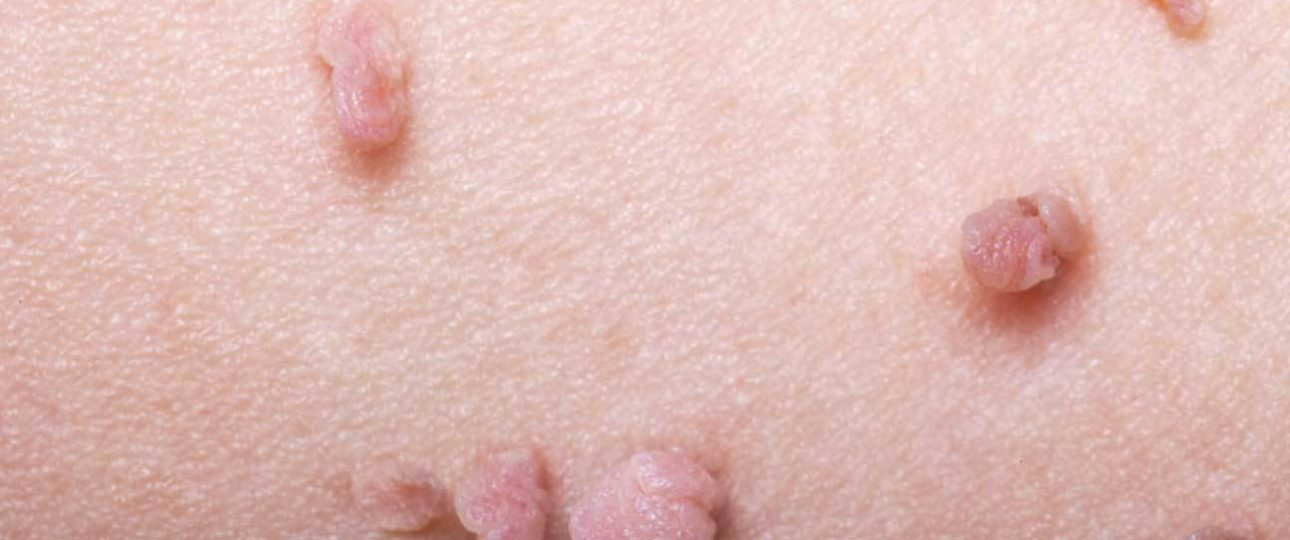 hpv virus is it dangerous hpv vaccine and cervical cancer