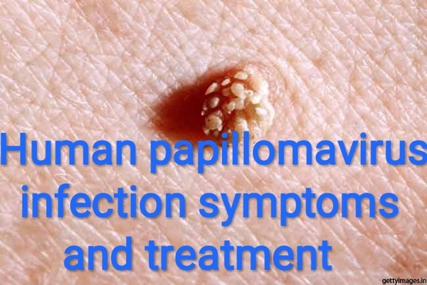 squamous cell papilloma cure