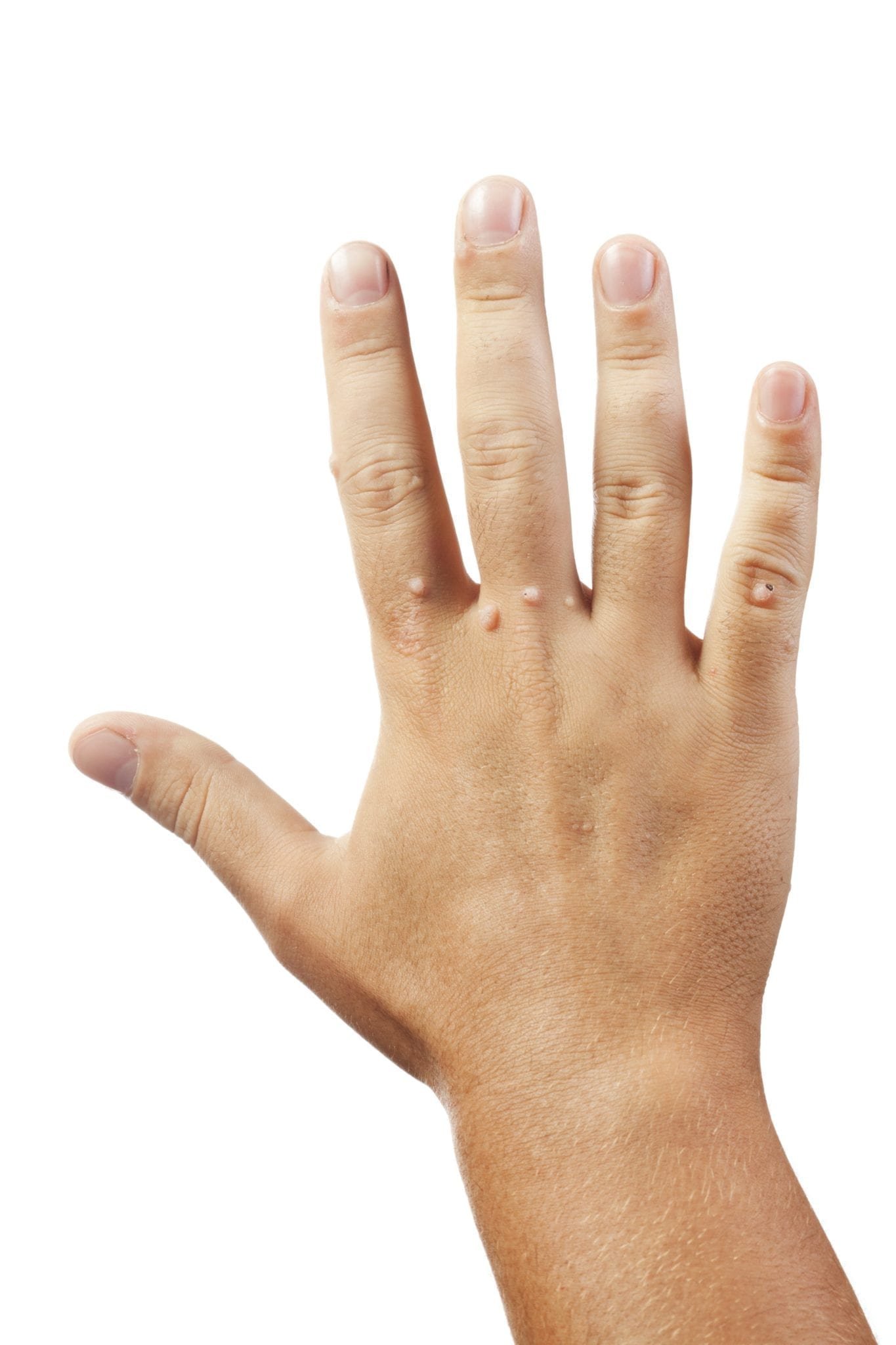 do warts on hands go away
