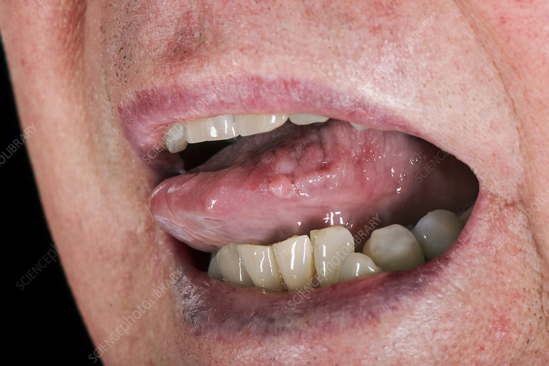 papilloma under tongue