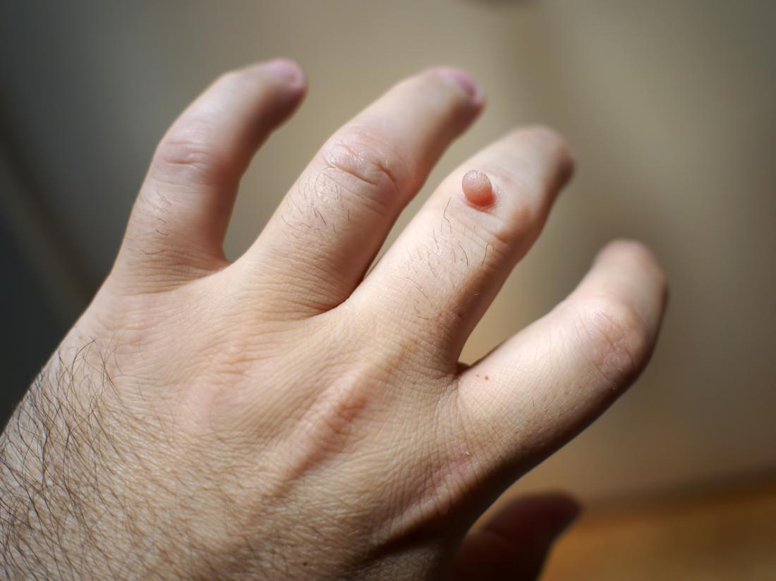warts treatment and causes cancer genetic markers of susceptibility