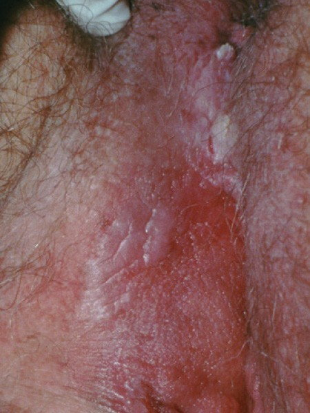 hpv warts while pregnant hpv transmission homme