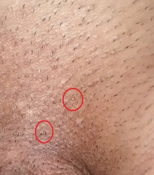 hpv warts not going away
