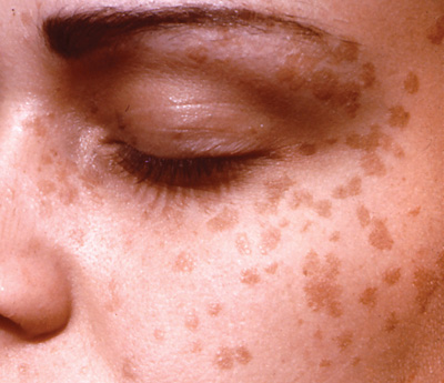 hpv skin warts on face hpv integration head and neck cancer