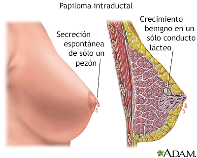 lombrices oxiuros tratamiento hpv da cancer na garganta