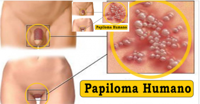 hpv hereditary cervical cancer
