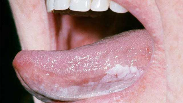 base of tongue cancer caused by hpv