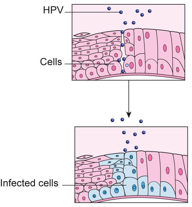 hpv to cervical cancer time frame