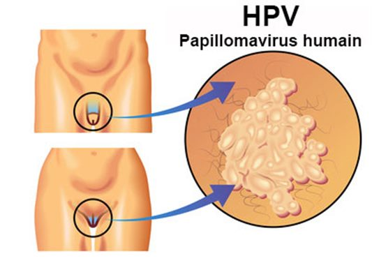hpv cryotherapy removal helminth infections and their impact on global public health