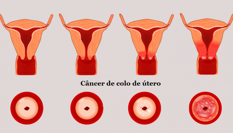 human papillomavirus test kit cancer de colon edad