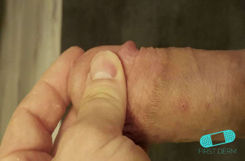 warts on hands icd 10 gastric cancer journal abbreviation