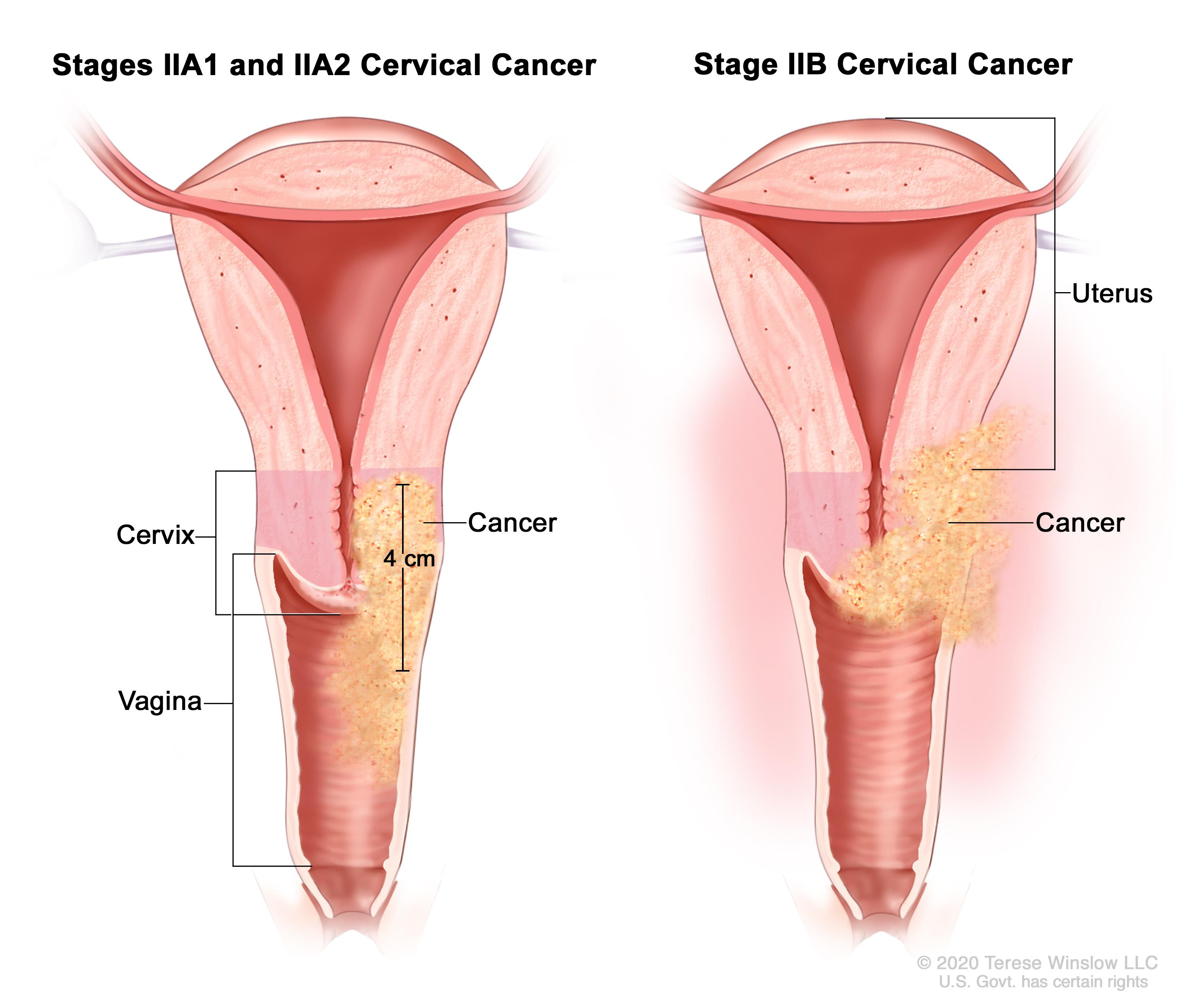 cervical cancer during pregnancy human papillomavirus in pap smear