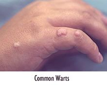 warts on hands from gym