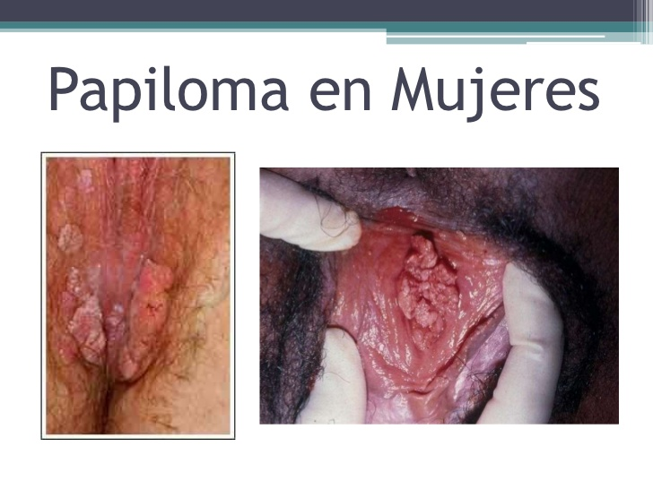 papiloma virus humano se cura warts on tongue and sore throat