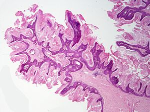 hpv virus after pap smear