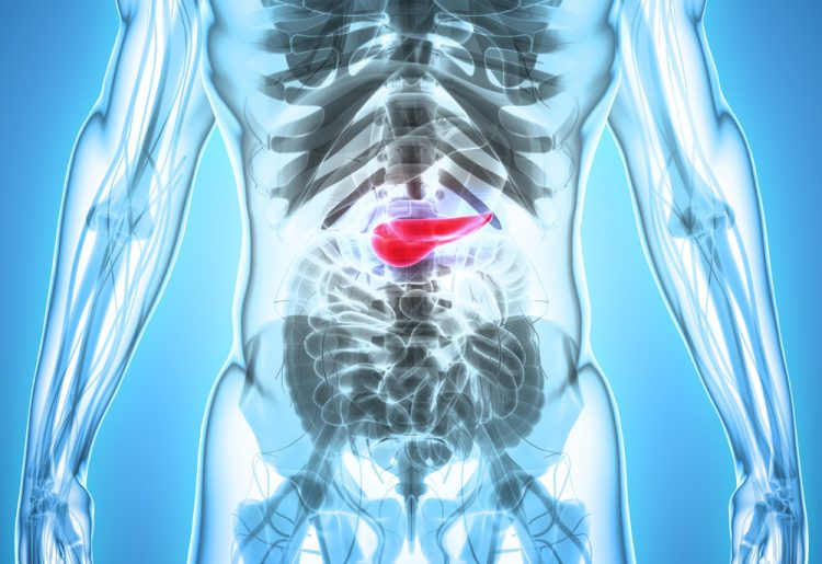 pancreatic cancer x ray images