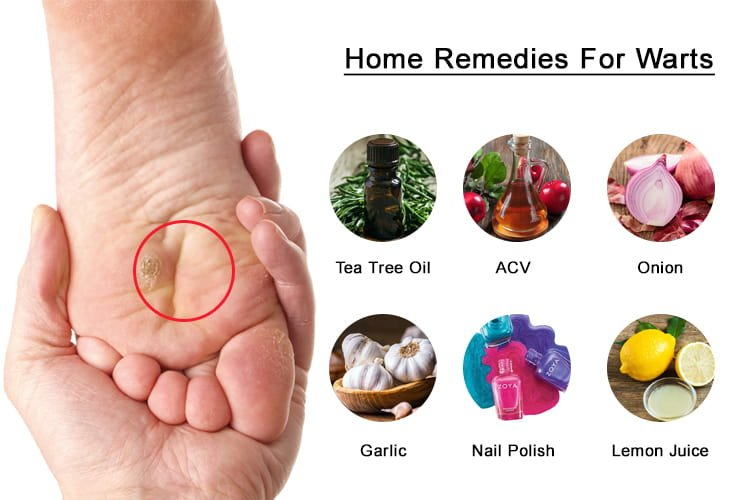 wart removal home remedy nail polish lid papillom entfernen