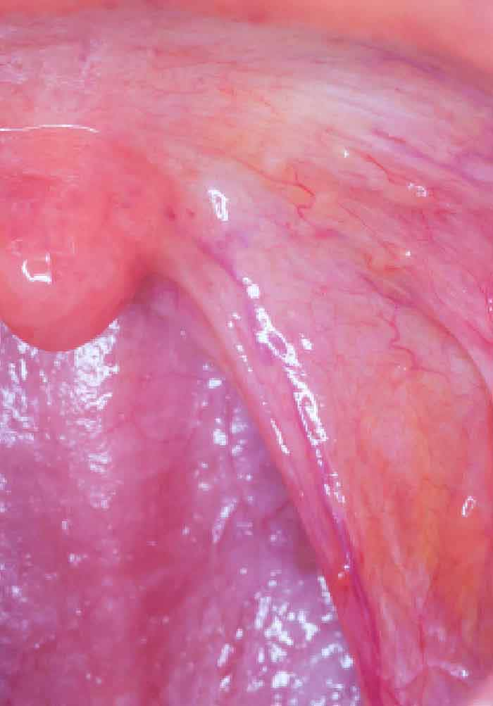 does hpv throat cancer spread