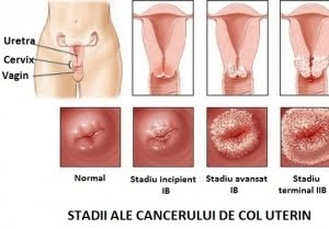hpv treatment supplements sarcoma cancer growth rate
