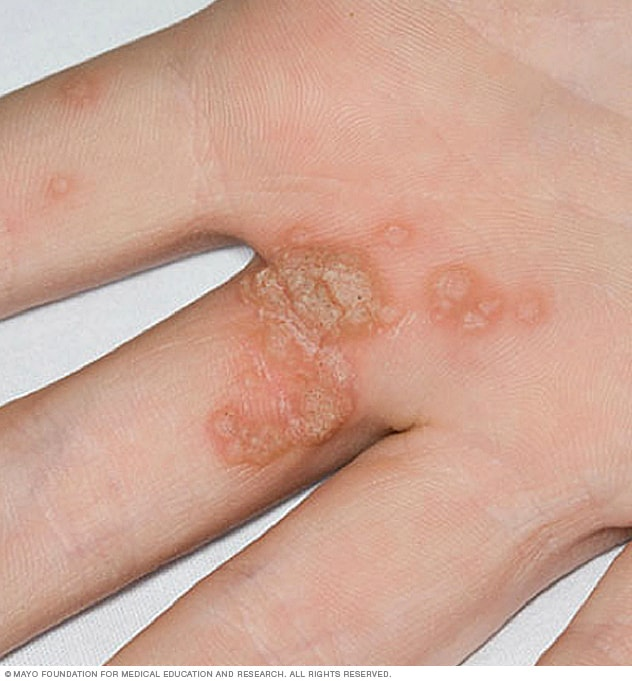 warts on hands what causes it
