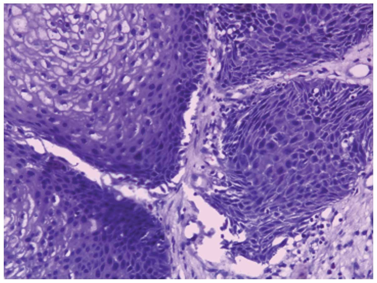 papilloma with atypical cells