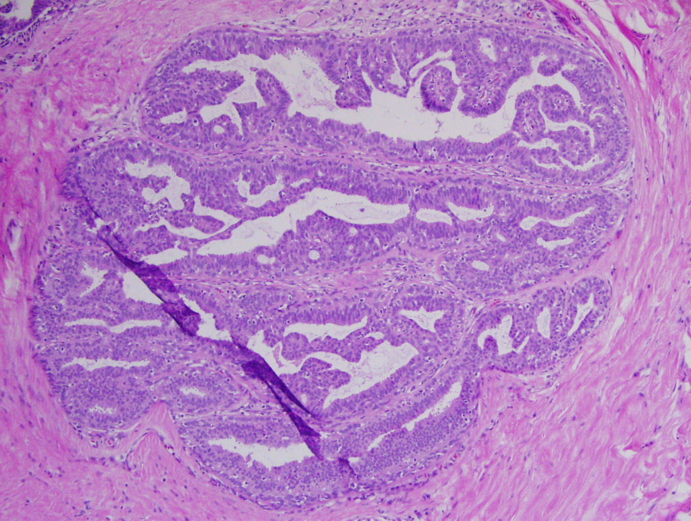intraductal papilloma tumor
