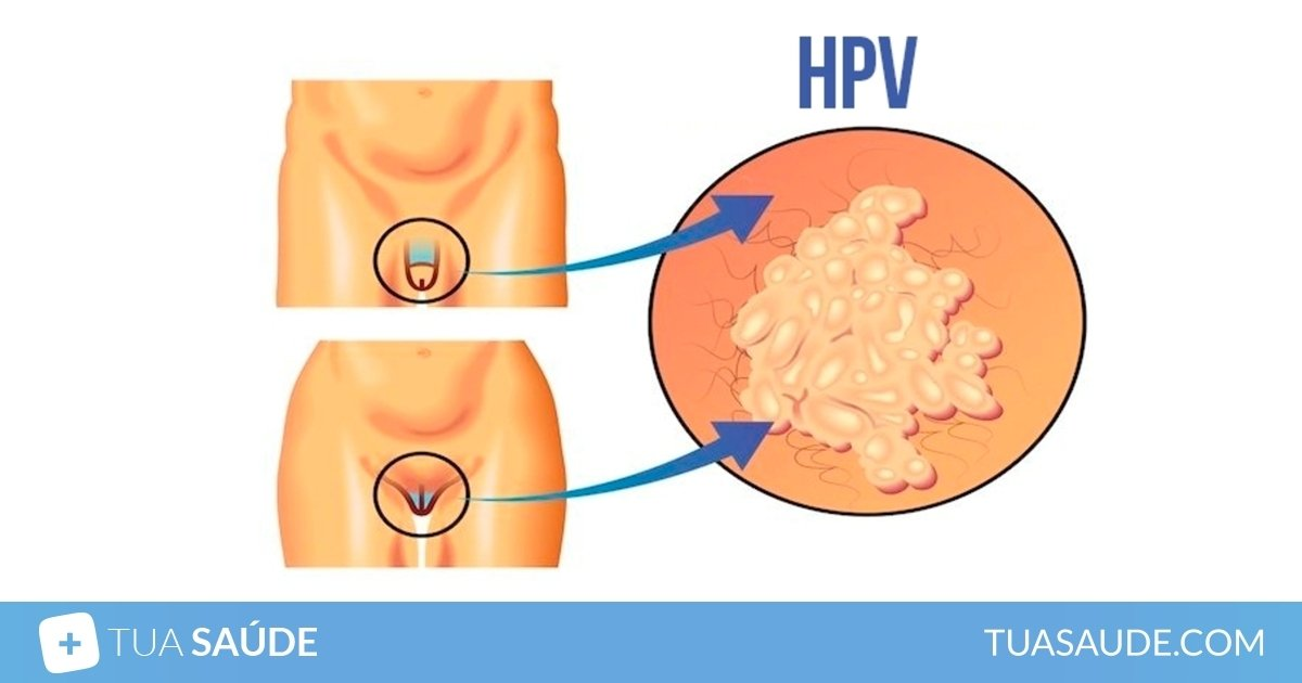 virus hpv tem cura no homem hpv virus how is it contracted