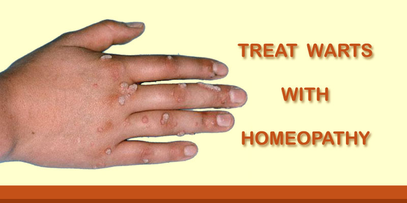 warts on hands treatment wart mouth disease