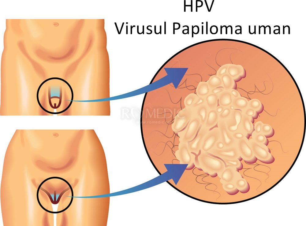 virus papiloma manusia (hpv) colorectal cancer jobs