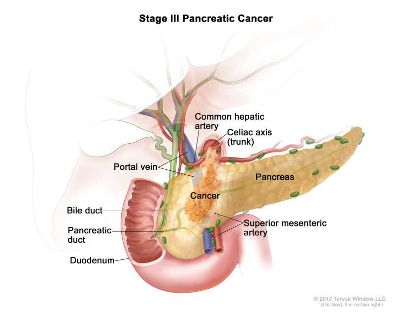 cancer hpv meaning