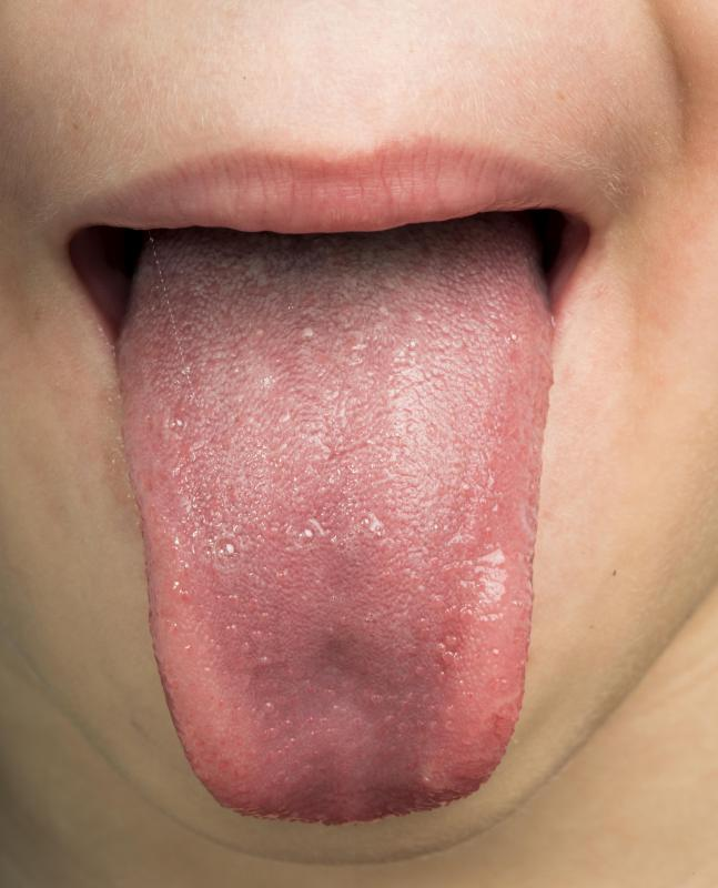 mouth is dripping with - Translation into Romanian - examples English | Reverso Context