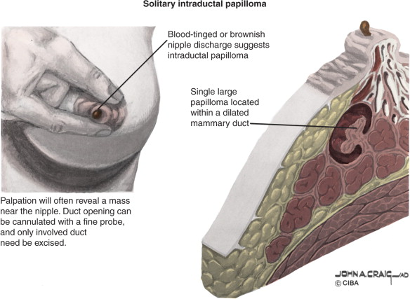 why do breast papillomas need to be removed