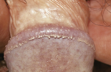 hpv wart number