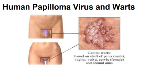 papilloma or infection virus del papiloma humano sus sintomas