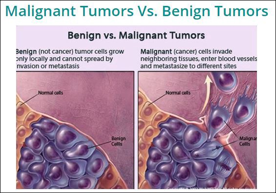 breast cancer benign tumor