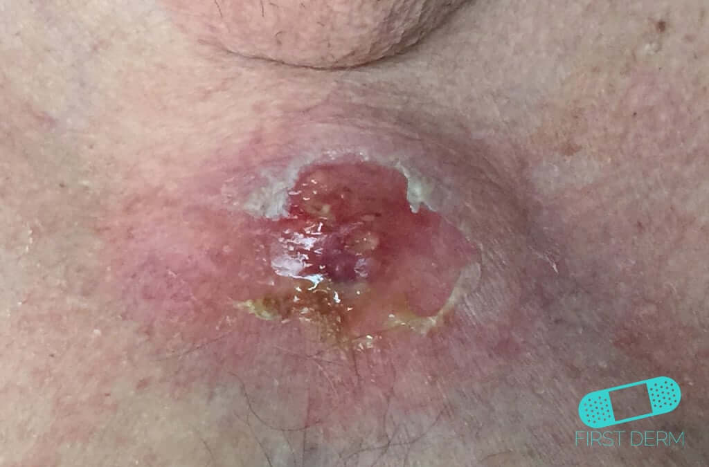 squamous cell papilloma icd 10 hpv related cancer incidence