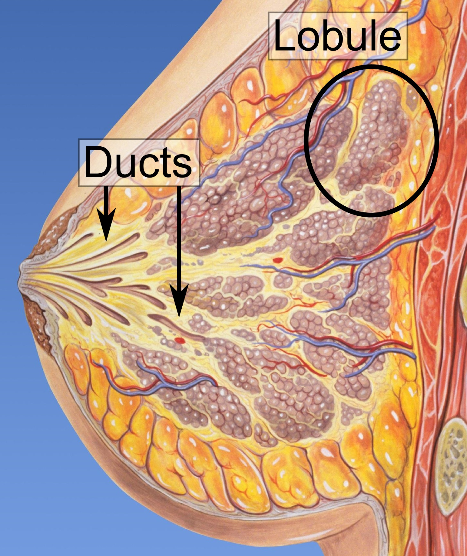 can breast papilloma be cancerous