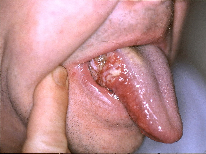 hpv throat infection symptoms