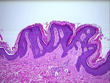 reticulated papillomatosis histology cervical cancer of causes
